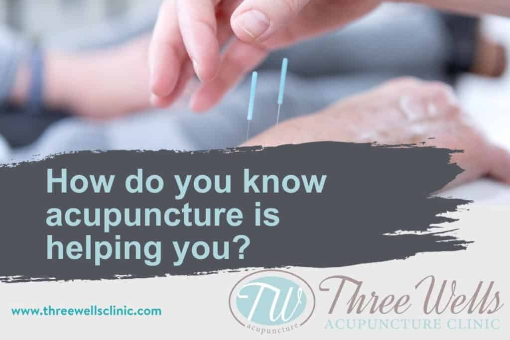 Acupuncture for the wrist